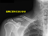 Collar_bone_bk